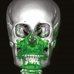 Cirurgia ortognática em paciente com síndrome de Down: relato de caso