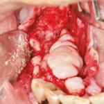 Caso raro de extensa exostose maxilar e mandibular: relato de caso