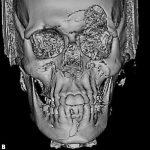Tratamento de fratura panfacial com posterior reconstrução de defeito frontal: relato de caso